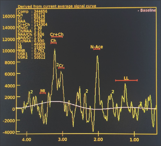Figure 3: Spectroscopy image showing increased choline and creatine levels and lipid lactate level peak noted